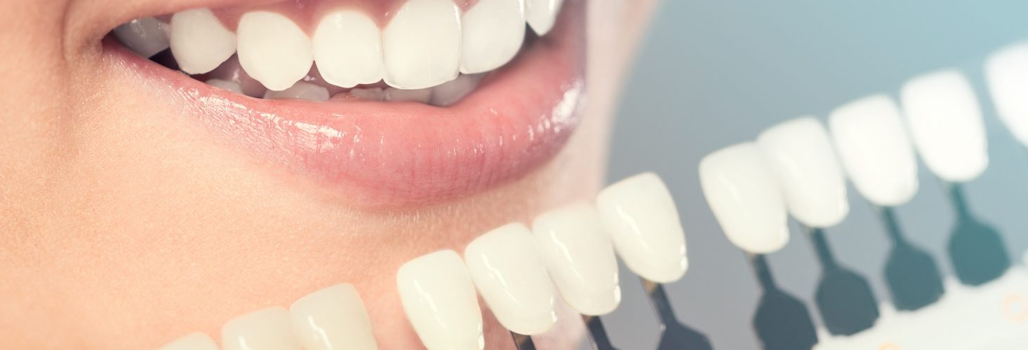 Essential Insights On Cosmetic Dentistry